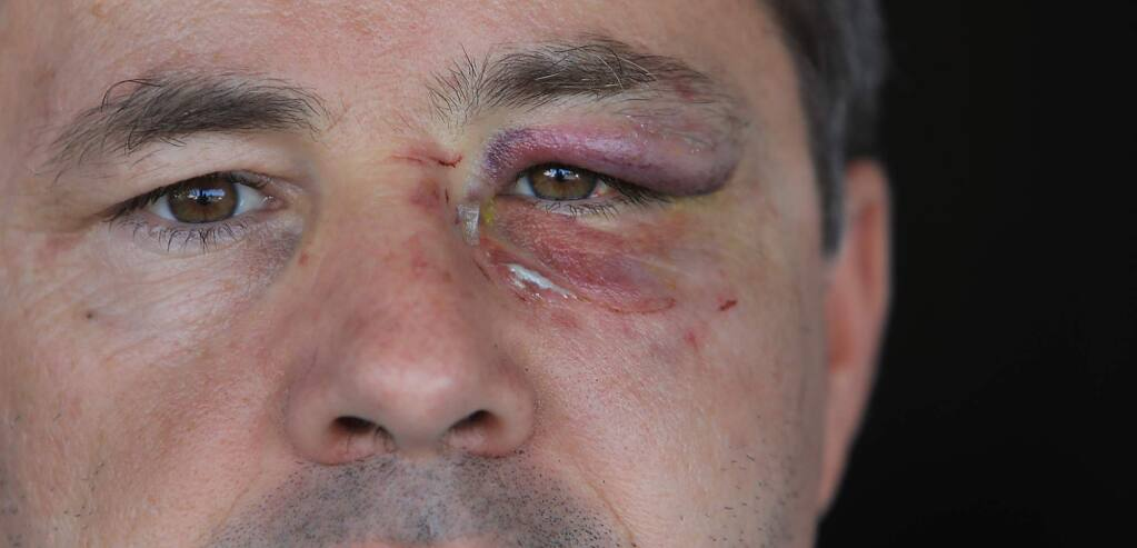 Bill Petty of Santa Rosa commutes to and from work on a bicycle, his route takes him on the Rodota Trail, past homeless encampments and others on the trail. Last week, he was assaulted after several people in a group refused to move off the trail to let him through. He sustained two fractures to his face. (Kent Porter / The Press Democrat) 2018