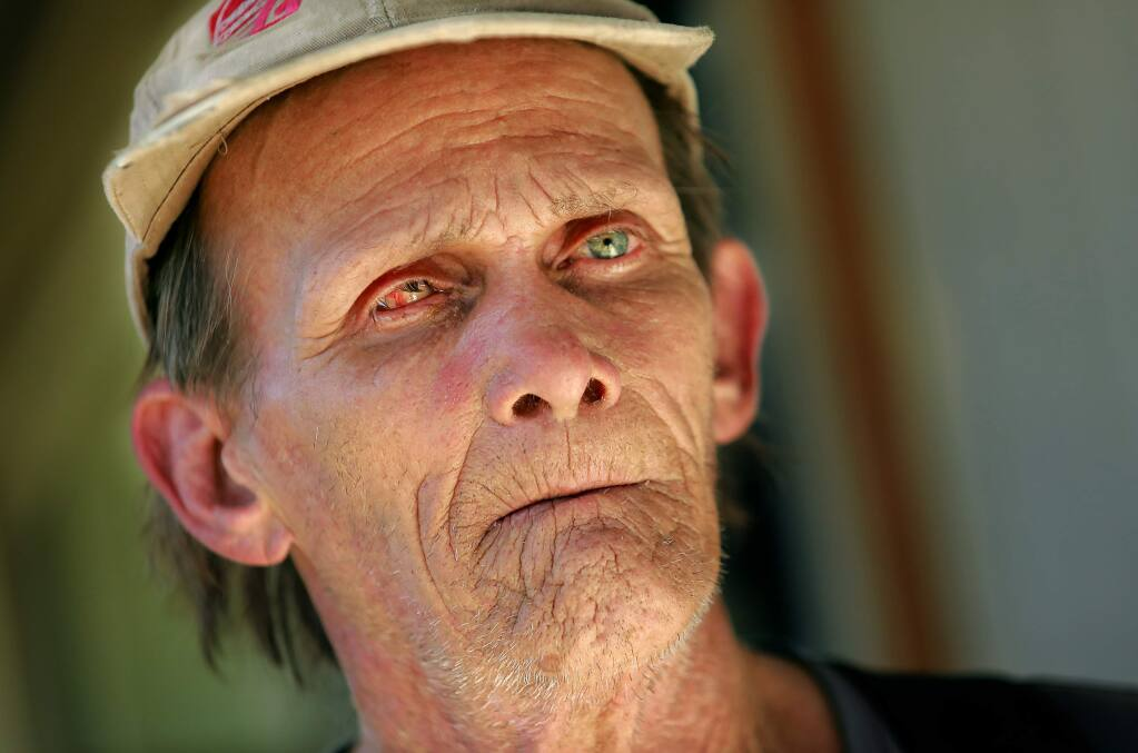 Robert Percy lost his right eye after it was burned by an ember while he battled the Tubbs fire near his home in the Coddingtown Estates mobile home park. FEMA has denied financial assistance for his case. (photo by John Burgess/The Press Democrat)
