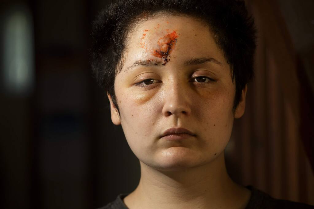 Micheala Staggs was injured early Sunday morning, May 31st, when a chalk projectile hit her in the forehead while protesting the death of George Floyd. (photo by John Burgess/The Press Democrat).