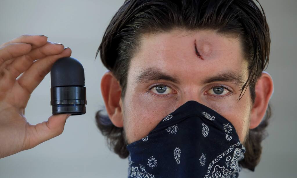 Ryland Stamey, Thursday, June 4, 2020, was injured by a rubber bullet during the first night of the George Floyd protests in Santa Rosa last Saturday, (Kent Porter / The Press Democrat) 2020