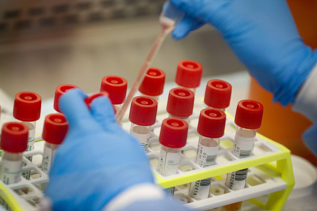FILE - In this Wednesday, March 11, 2020 file photo, a technician prepares COVID-19 coronavirus patient samples for testing at a laboratory in New York's Long Island. (AP Photo/John Minchillo)