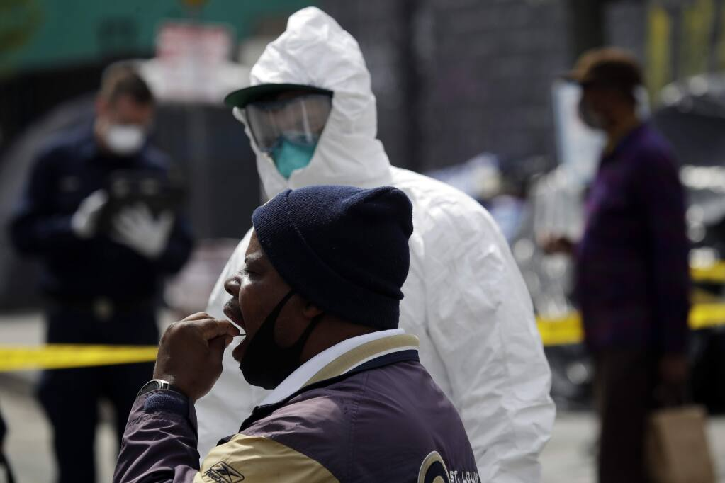 A man swabs his mouths while taking a COVID-19 test in the Skid Row district Monday, April 20, 2020, in Los Angeles. (AP Photo/Marcio Jose Sanchez)