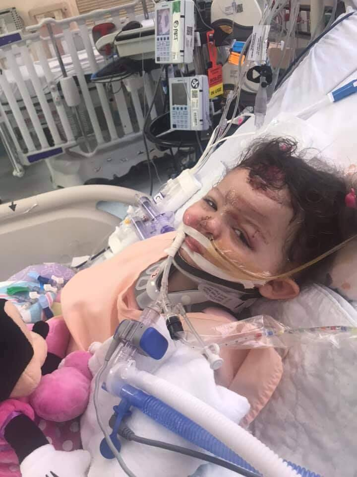 Saphira Howerton, 2, recovers in her hospital bed at Oakland Children's Hospital in July after suffering severe injuries in a hit-and-run collision in Santa Rosa. (APRIL HOWERTON/ FACEBOOK) ly. (APRIL HOWERTON/ FACEBOOK)